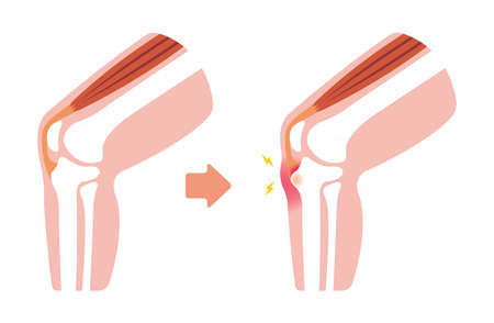 Disease Osgood-schlatter disease (knee joint illustration)