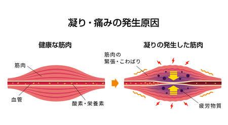 Causa de la rigidez muscular y la ilustración del dolor. Ilustración de vector
