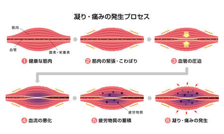 Illustration the Process of muscle's stiffness and pain