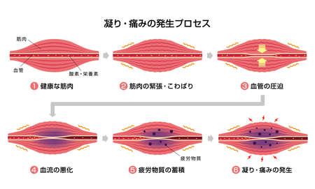 Ilustración del proceso de rigidez y dolor muscular.