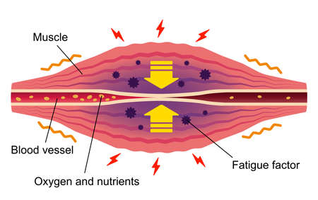 Stuffness and pain occur. ... Flat illustration of muscle and vessel.