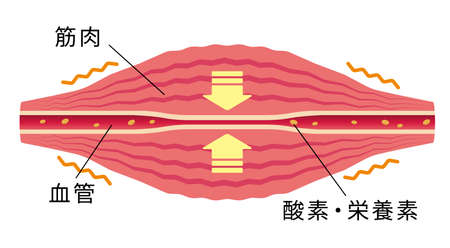 Blood vessel compressed. ... Flat illustration of muscle and vessel.