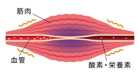 Blood flow worse. ... Flat illustration of muscle and vessel. Illustration