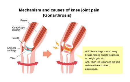 Mechanism and causes of knee joint pain (gonarthrosis/Osteoarthritis/arthrosis of knee). Vector Illustration