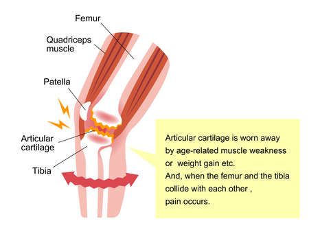 Knee Joint Pain (gonarthrosisOsteoarthritisarthrosis of Knee). Flat illustration Illustration