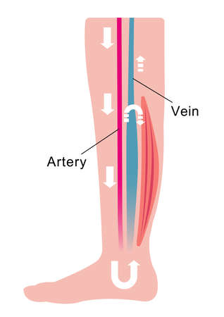 Cause of swelling (edema) of the legs. Water in the blood stagnates and venous pressure rises