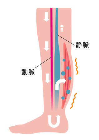 Cause of swelling (edema) of the legs. Water leaks from the veins and swelling occurs Illustration