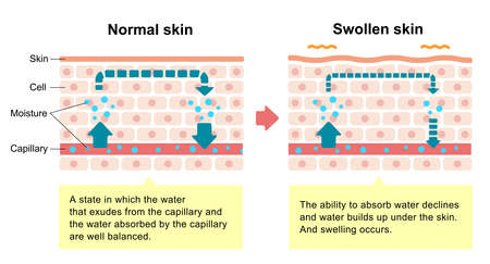 Illustration comparative de la peau normale et de la peau enflée