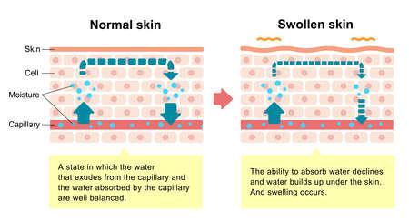Comparison illustration of normal skin and swollen skin