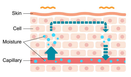 Illustration of swollen skin condition (Malfunction of moisture circulation). Illustration