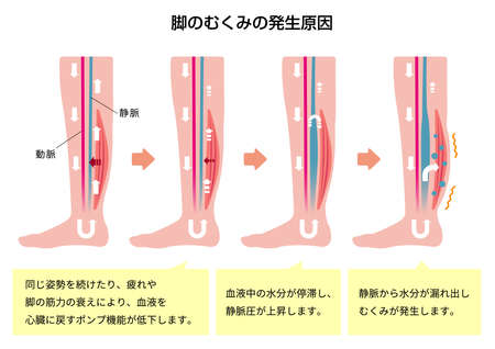 Cause of swelling (edema) of the legs. Flat illustration (with explanation text). Çizim