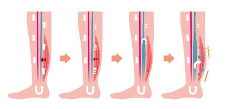 Causa de hinchazón (edema) de las piernas. Ilustración plana (sin texto) Ilustración de vector