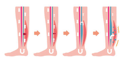 Cause of swelling (edema) of the legs. Flat illustration (no text) 向量圖像