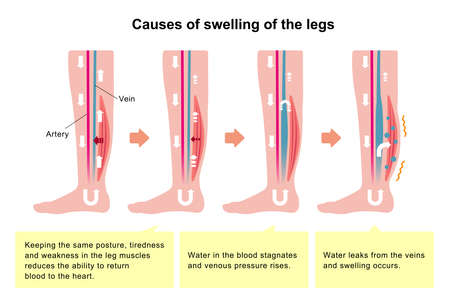 Cause of swelling (edema) of the legs. Flat illustration (with explanation text). Illustration