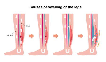 Cause of swelling (edema) of the legs. Flat illustration. Illustration