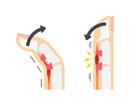 Trigger finger causes and symptoms illustration / No text
