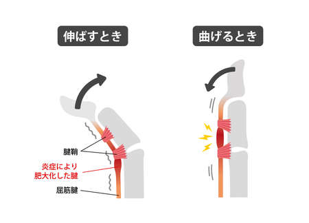 Trigger finger causes and symptoms illustration / Japanese