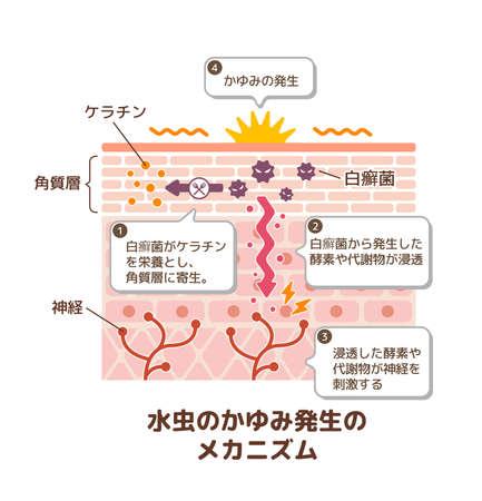 Generation mechanisim of athletes foot ( ringworm) vector illustration  with Japanese explanation texts.
