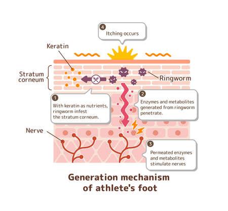 Generation mechanisim of athletes foot ( ringworm) vector illustration  with English explanation texts. Illustration