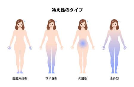 Types of Cold Sensitivity  Poor Circulation Vector Illustration (Japanese) Illustration