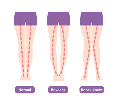 Difference Types of Legs Angles and Vector Knees Illustration . Normal, Bowlegs, Knock-knees.