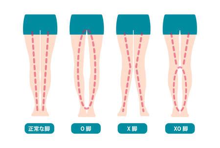 Différence entre les types d'angles des jambes et l'illustration vectorielle des genoux (japonais)