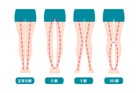 Difference Types of Legs Angles and Vector Knees Illustration (Japanese)