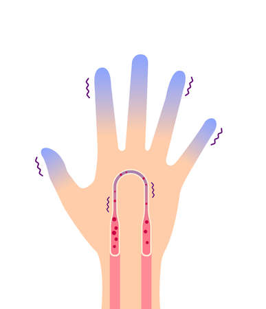 Cold hand blood circulation illustration (sensitivity to cold, cold fingertips) / no text Stock Illustratie