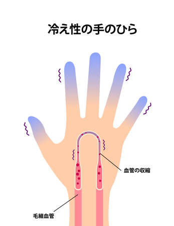 Cold hand blood circulation illustration (sensitivity to cold, cold fingertips) / Japanese Stockfoto - 141934153