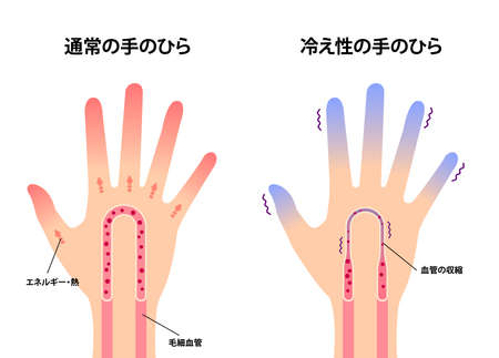 Comparison illustration of normal hand and cold hand ( sensitivity to cold, cold fingertips) / Japanese Stock Illustratie