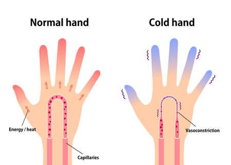 Illustration comparative d'une main normale et d'une main froide (sensibilité aux doigts froids et froids)