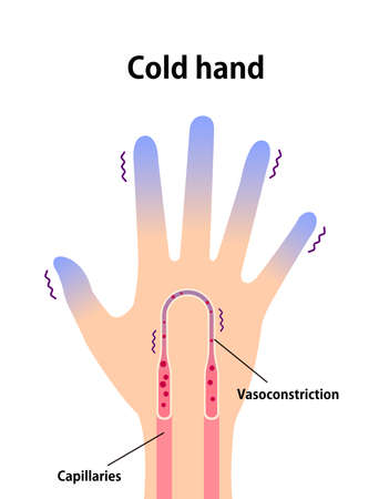 Cold hand blood circulation illustration (sensitivity to cold, cold fingertips)