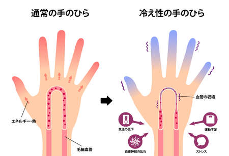 Comparison illustration of normal hand and cold hand ( sensitivity to cold, cold fingertips) / Japanese Illustration
