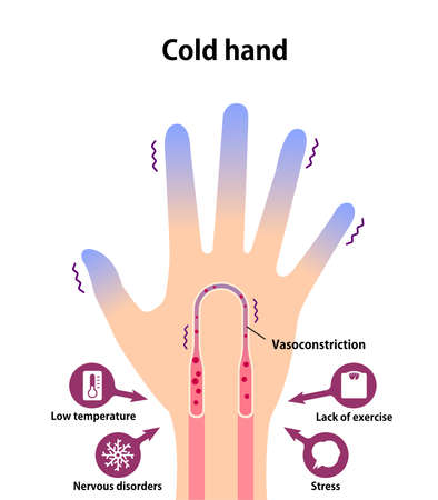 Cold hand blood circulation illustration (sensitivity to cold, cold fingertips) Stock Illustratie