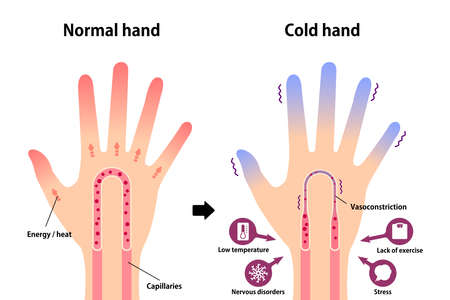Comparison illustration of normal hand and cold hand ( sensitivity to cold, cold fingertips)