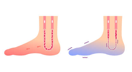 Comparison illustration of normal foot and cold foot ( sensitivity to cold, cold toes) / no text