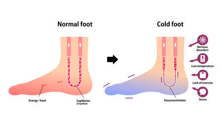 Comparison illustration of normal foot and cold foot ( sensitivity to cold, cold toes)