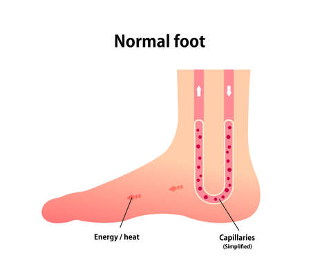 Normal foot blood circulation illustration