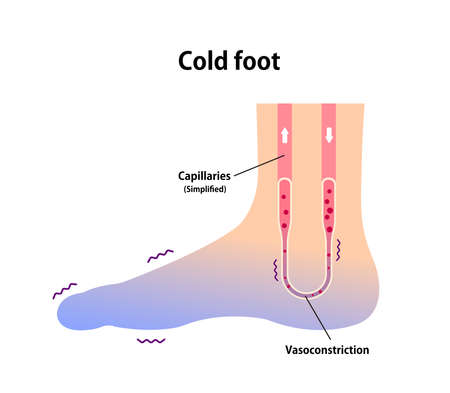 Cold foot blood circulation illustration (sensitivity to cold, cold toes)