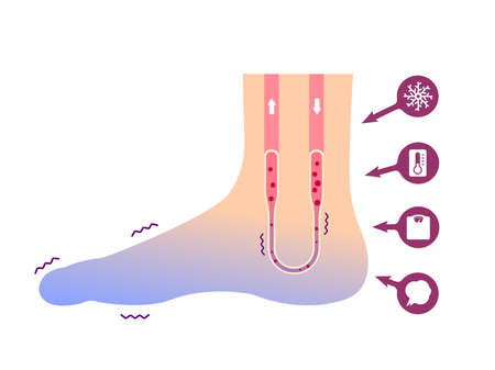 Cold foot blood circulation illustration (sensitivity to cold, cold toes) / No text Stock Illustratie