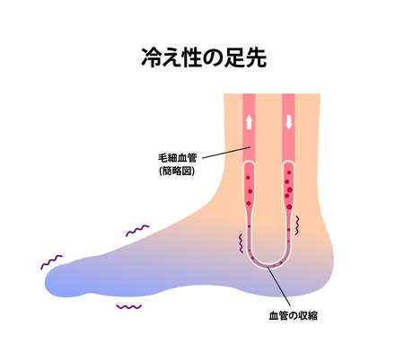Cold foot blood circulation illustration (sensitivity to cold, cold toes) / Japanese