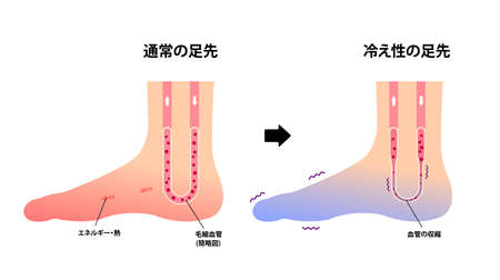 Comparison illustration of normal foot and cold foot ( sensitivity to cold, cold toes) / Japanese