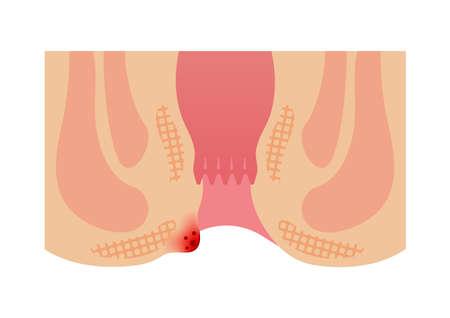 Type of Hemorrhoid flat vector illustration / External hemorrhoid