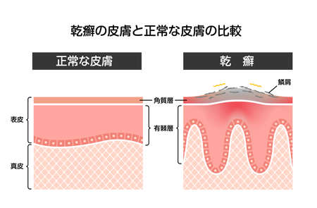 Cross section of psoriasis and normal skin / flat vector illustration (Japanese)