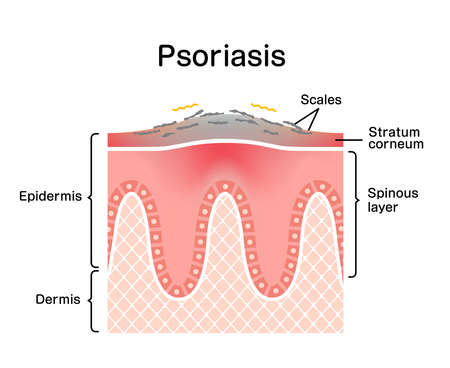 Cross section of psoriasis skin / flat vector illustration 向量圖像