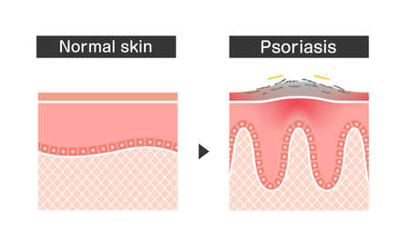 Cross section of psoriasis and normal skin / flat vector illustration