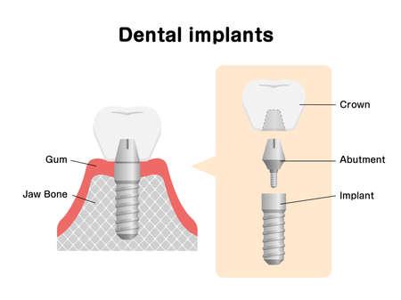 Dental implant flat vector illustration  イラスト・ベクター素材