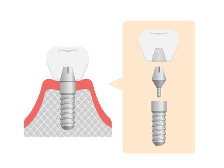 Dental implant flat vector illustration (No text) Vectores