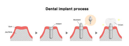 Dental implant process flat vector illustration
