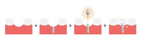 Dental implant process flat vector illustration (no text)